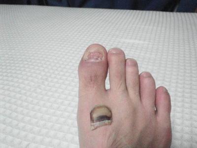 足の爪 根元から剥がれる
